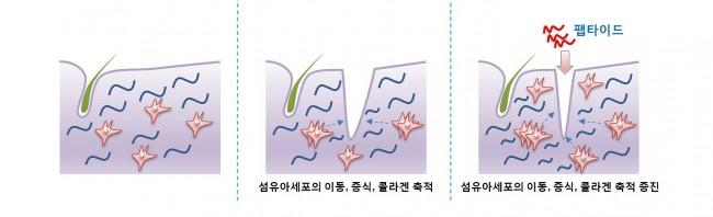 정상적인 피부(왼쪽)가 상처가 나면(가운데)  - 연세대 제공